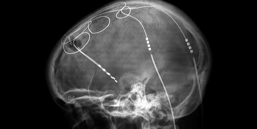 100722dbs_implant